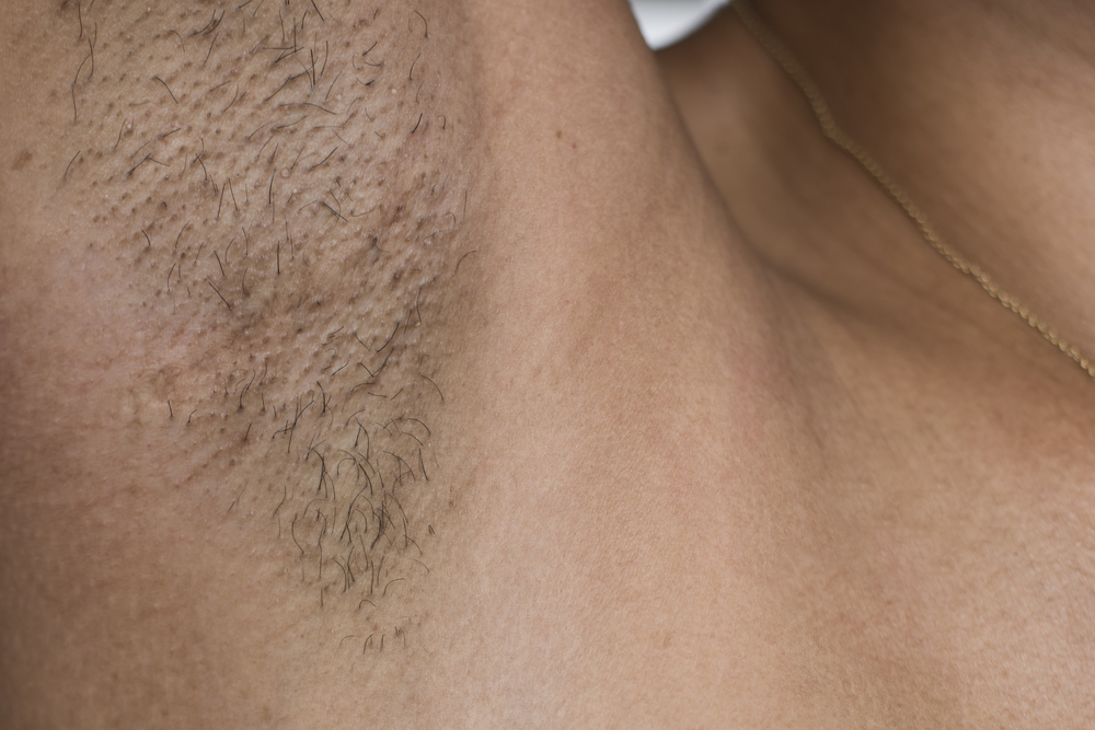 の 処理 脇毛